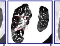 A, A imagem de TC axial convencional inicial não mostra nenhum dano pulmonar perceptível (dentro da caixa vermelha) no lobo superior direito.  B, Imagem de TC espectral de densidade de elétrons obtida ao mesmo tempo que a imagem em A mostra lesões (dentro da caixa vermelha) no lobo superior direito.  C, Imagem de TC de tórax axial convencional obtida 5 dias após as imagens em A e B confirmarem a presença de lesões (dentro da caixa vermelha) no lobo superior direito.  Imagem cortesia da American Roentgen Ray Society (ARRS), American Journal of Roentgenology (AJR)