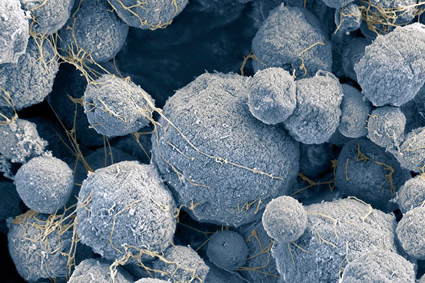 Coloured scanning electron micrograph of Methanosarcina mazei archaea have the appearance of irregular round furry balls