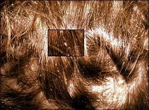 Piojos de la cabeza: primer plano de liendres en el cabello