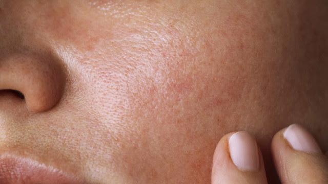 Mel e amêndoas: A máscara caseira para quem tem pele com manchas