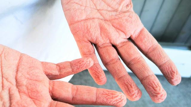 Dedos enrugados? Recuperados da Covid-19 relatam novos sintomas