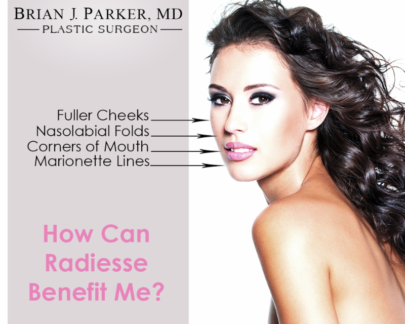 Graphic showing how Radiesse can benefit you