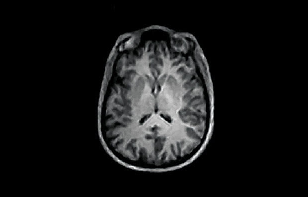 A brain image reconstructed from MRI data with AUTOMAP.