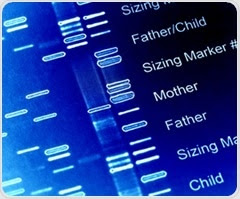 Research links DNA variants to increased risk of IBS in women