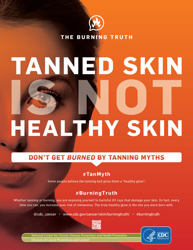 Tanned Skin Is Not Healthy Skin