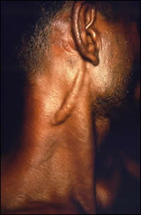A patient diagnosed with Hansen's disease, or leprosy, which is caused by the bacterium Mycobacterium leprae and is reportable in many states.