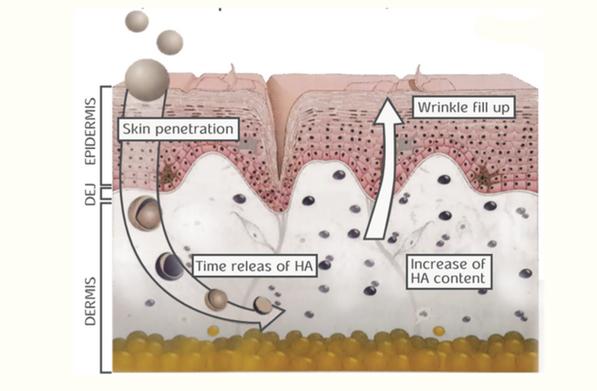 חומצה היאלורונית במשקל מוליקולרי נמוך יכולה להיספג דרך העור
