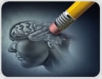Alzheimer's disease often detected late due to lack of screening finds report