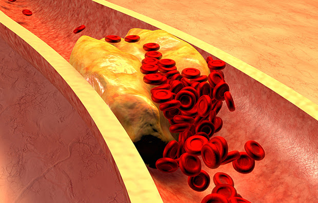 An illustration of a blood vessel with plaque buildup.