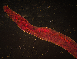 Therapy derived from parasitic worms downregulates proinflammatory pathways