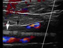 Trombose venosa profunda (TVP) associada a cateter central de inserção periférica (PICC) em um homem de 54 anos com COVID-19.  Imagem sagital de ultrassom Doppler colorido mostra trombo ecogênico (setas pretas) em veia subclávia direita, associado à linha PICC (seta branca).  Imagem cortesia de Margarita Revzin et al.  Coágulo causado por COVID