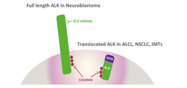The gene EML4 is a common fusion partner in cancers with ALK gene alterations known as translocations.