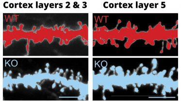 Knockout of FABP4 Changes the Morphology of Cortical Neurons