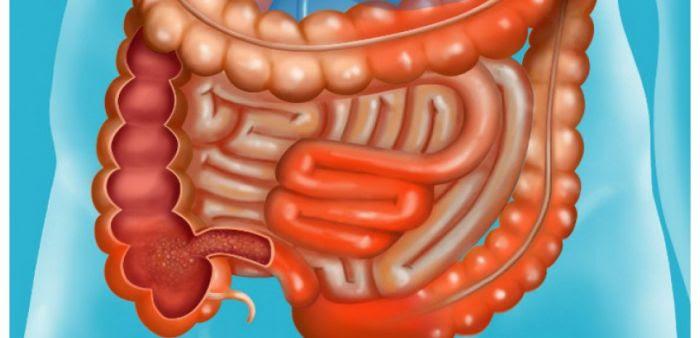 La maladie de Crohn est une inflammation chronique du tube digestif, touchant principalement l'iléon, le côlon et l'anus.