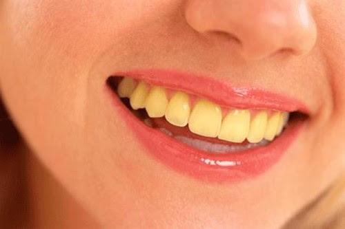 Yellow-Teeth.jpg