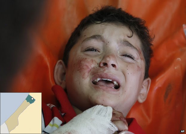 A Palestinian child, wounded in a strike on a compound housing a UN school in Beit Hanoun, in the northern Gaza, cries at the emergency room of the Kamal Adwan hospital in Beit Lahiya, Thursday 24 July 2014