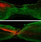 HKUST researchers cut mouse corticospinal tract axons (labeled red). A year later, they deleted the Pten gene in the experimental group (bottom) but not the control group. The Pten gene removal resulted in axon regrowth in seven months, unlike the control group (top). (credit: Kaimeng Du et al./The Journal of Neuroscience)