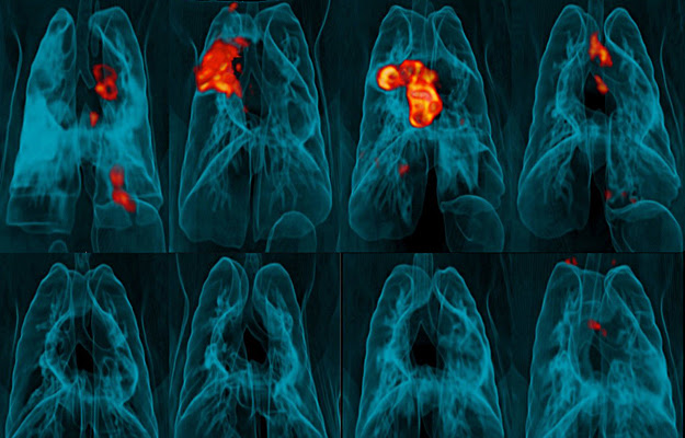 An image of PET-CT lung scans.