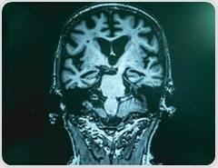 Biomarkers for Alzheimer's Disease