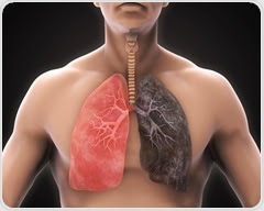 New computer program provides more thorough preparation for diagnosis of lung diseases