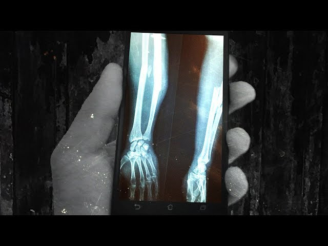 Telecoms to Send Passwords Through Your Bones With Bioacoustic Signals  Sddefault