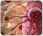 Breast cancer and lymphoma survivors at greater risk of developing heart failure