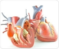 Cardiologists succeed in localized cooling of the heartto limit damage from heart attack