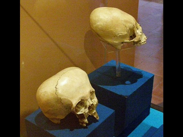 Ancient Elongated Skulls Of Mexico  Sddefault