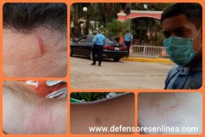 Imágenes que muestran las agresiones contra Heydi y Roberto Amaya, por la policía en Campamento, Olancho.