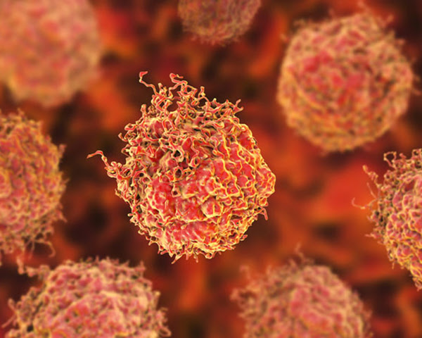 Phase III combination trial improves survival in men with metastatic prostate cancer