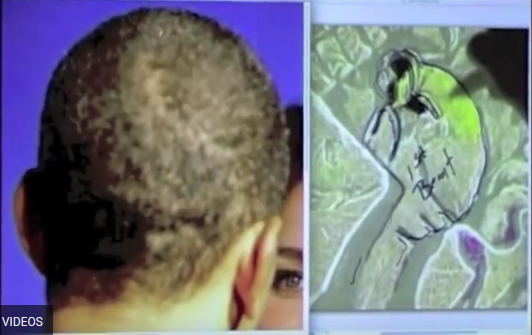 Head Scars of Obama 100% Match Akhenaten Hieroglyph! Pharaoh Returning for End Times (Videos)