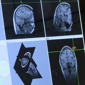 pain brain scan