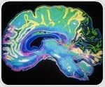 Scientists identify genes involved in age-related brain deterioration