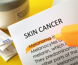 Identifying genetic factors that lead to squamous cell carcinoma