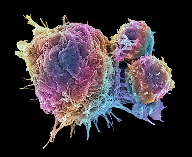 Cancer cells died after the treatment forced 'cell suicide'