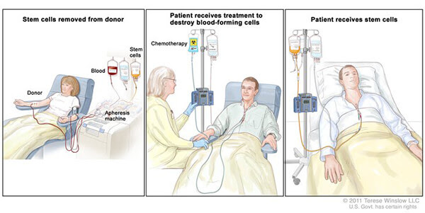 image describes steps of a stem call transplant
