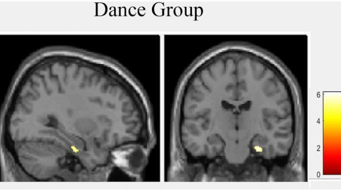 La danse augmente le volume de l'hippocampe