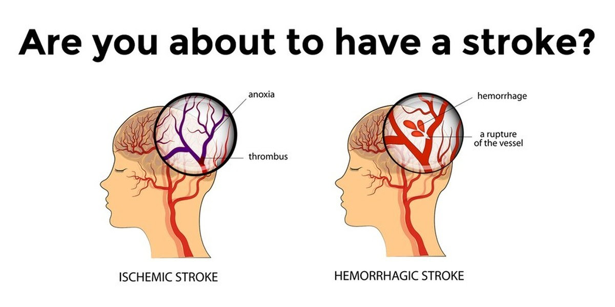 6 Warning Signs You Are About to Have a Stroke Soon