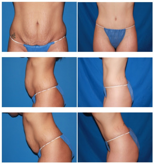 before and after tummy tuck surgery by Dr. Rochlin