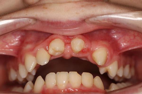 Dr. Uroš Mezeg je Urbanu presadil dva spodnja zoba na mesto zgornjih enic.
