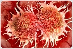 Study shows promise for future prostate cancer treatment