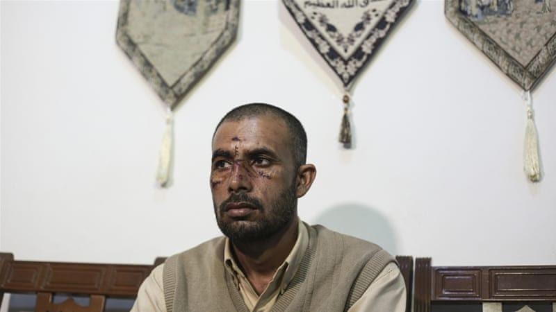 Ashfak Mahmoud was one of two migrant labourers attacked and hospitalised last weekend [Nikos Libertas/SOOC/Al Jazeera]