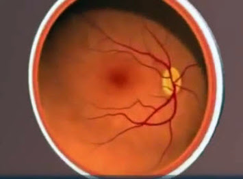 Eye with yellowish deposit under the retina and prominent blood vessels