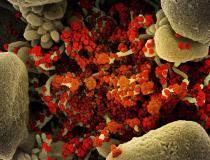 Micrografia eletrônica de varredura colorida de uma célula apoptótica (tan) fortemente infectada com partículas do vírus SARS-CoV-2 (laranja), isolada de uma amostra de paciente.  Imagem capturada no Instituto Nacional de Alergia e Doenças Infecciosas (NIAID) Integrated Research Facility (IRF) em Fort Detrick, Maryland.  Foto cortesia de NIAID