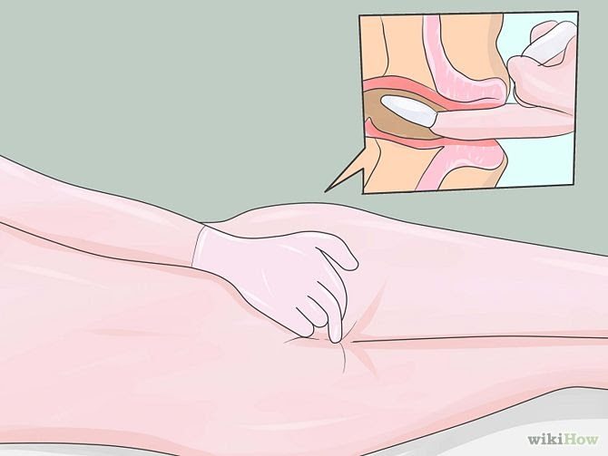 Proper way of inserting cannabis suppository