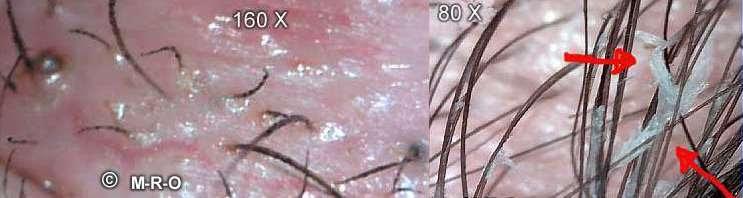 biofilm-fibers.jpg