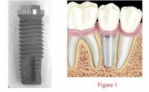 Other Dental implants in el paso