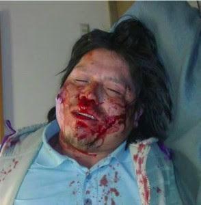 Comunero herido a bala