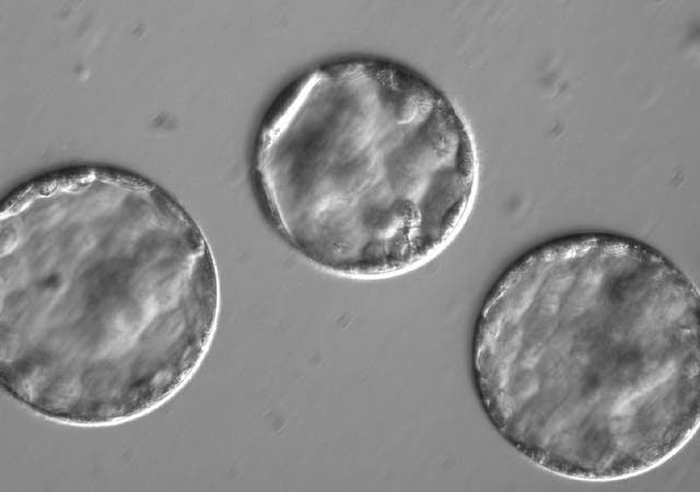 Hazaña: modifican genes en embriones humanos para evitar enfermedades