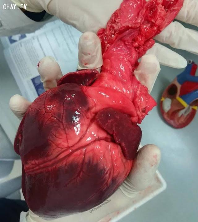 Bức ảnh của một trái tim khỏe mạnh,cơ thể con người